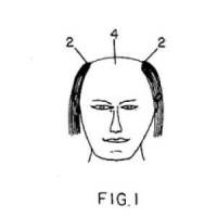 「おい!貴様!!誰に断って禿げてるんだよ!」バーコード頭の特許とは?